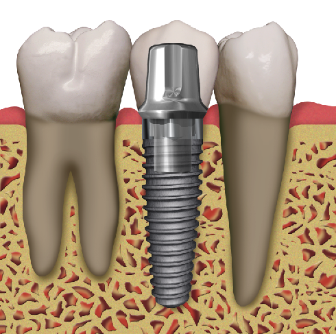 Implants. Are they right for you? implant with abutment and crown ...