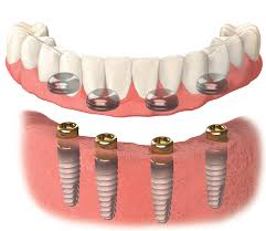 What Are Implant Locators?