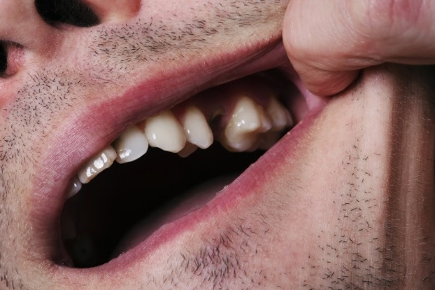 Follow these Steps If You Ever Lose an Adult Tooth